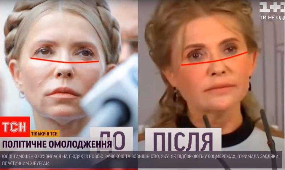 Юлія Тимошенко зробила пластичну операція. Фото: скриншот ТСН